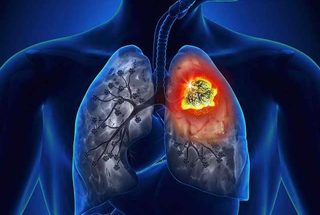 Lung Cancer And Mesothelioma Causes - Mega Mart - New Zealand